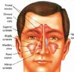 Cure Infection Sinus Clearing With Effective Alternative Medicine